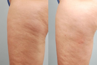 Cellulite-Treatment-before-100339 (1)
