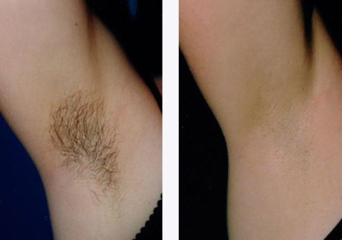hairremoval2